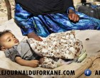 Combien d'enfants souffrent de malnutrition au Yémen ? Un nombre incroyable !