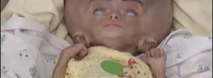 ATTENTION IMAGES CHOQUANTES !!! Des bébés yéménites avec des maladies rares causées par le régime saoudien qui bombarde sans cesse le Yémen avec des armes interdites !!!