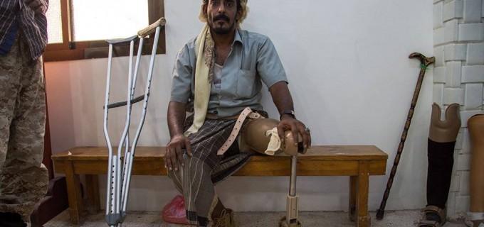 En photo : les effets des crimes de l'agression saoudienne contre le peuple yéménite
