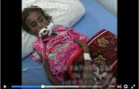 [Vidéo] | Un enfant meurt de faim toutes les 10 minutes au Yémen