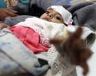Yémen : Près de 2000 personnes mortes du choléra sur les14 dernières semaines