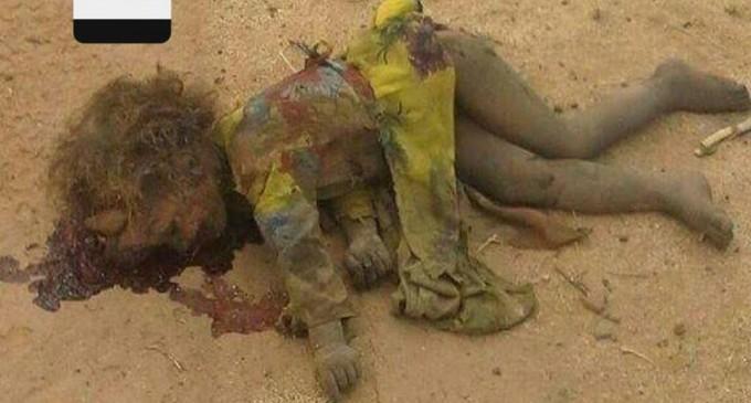 Les crimes des Saoud au Yémen.