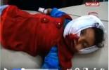 [Vidéo] | Une jeune yéménite de 3 ans blessée par une attaque à la roquette sur son école dans le district de Razih (Gouvernorat de Saada)