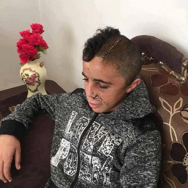 Mohamed Tamimi, le cousin de Ahed Tamimi, qui est toujours enfermé dans les prisons israéliennes, est rentré de l'hôpital hier après que les médecins ont retiré une balle de son cerveau