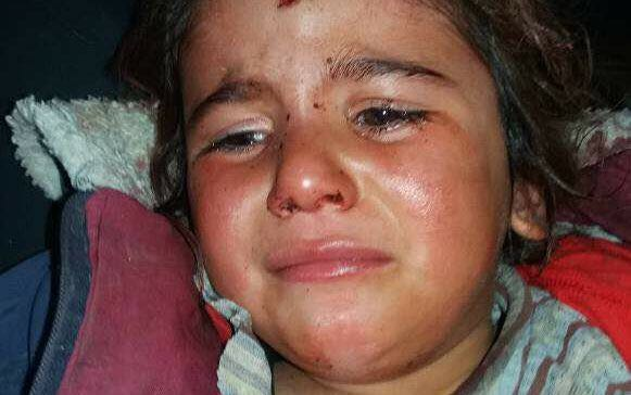 35 civils tués depuis le début des attaques turques, le 20 janvier contre les Kurdes d'Afrin4