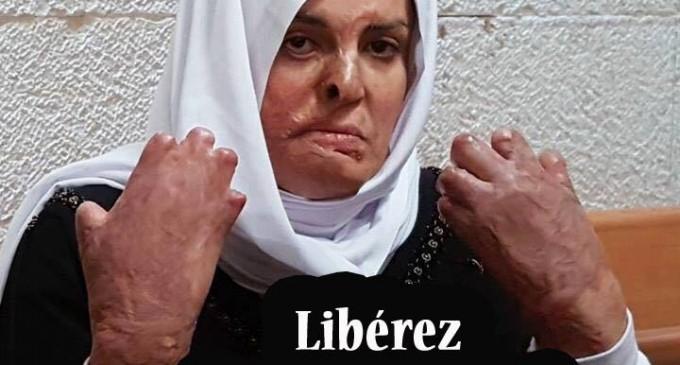 Israa Al-Jaabis, au tribunal militaire israélien, ce matin. Elle montre les graves brûlures qui lui ont été faites au visage et aux mains