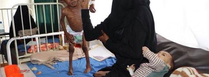 Seulement au Yémen…