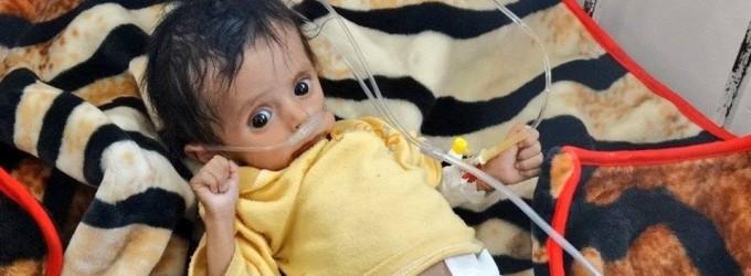 Le Yémen aujourd'hui