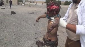 14 civils pour la plupart des femmes et des enfants tués lors d'un raid aérien de la coalition arabo-US2