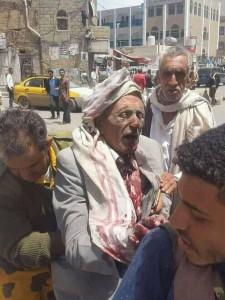 91 martyrs et blessés dans un nouveau massacre de la coalition arabo-US dans la capitale du Yémen3