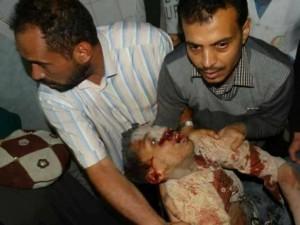 91 martyrs et blessés dans un nouveau massacre de la coalition arabo-US dans la capitale du Yémen5
