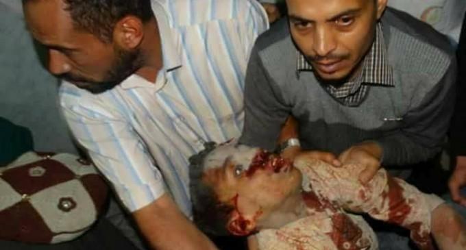 91 martyrs et blessés dans un nouveau massacre de la coalition arabo-US dans la capitale du Yémen