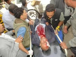 91 martyrs et blessés dans un nouveau massacre de la coalition arabo-US dans la capitale du Yémen6