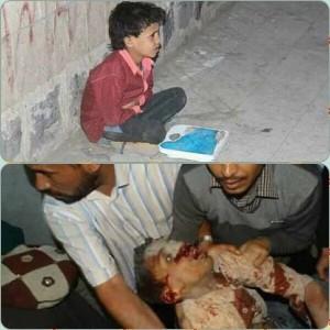 91 martyrs et blessés dans un nouveau massacre de la coalition arabo-US dans la capitale du Yémen9