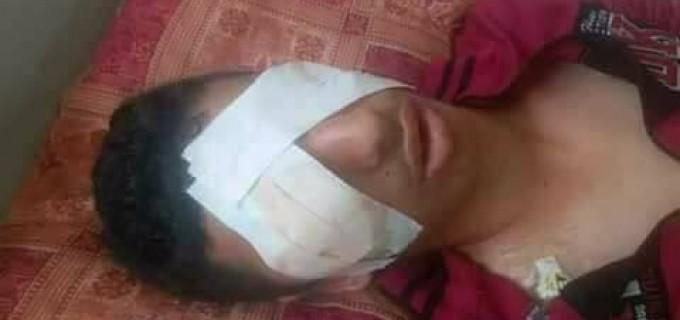 Ahmed Ashour, 17 ans, de Gaza est devenu aveugle après qu'un soldat israélien lui ait tiré dans les yeux