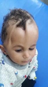 Des enfants yéménites avec des maladies rares causées par le régime saoudien qui bombarde sans cesse le Yémen avec des armes interdites !!!1