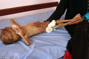 Des photos choquantes d'un enfant mal nourri montrent les effets brutaux de la guerre menée par la coalition Arabo-US contre le Yémen 2