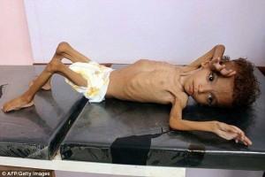Des photos choquantes d'un enfant mal nourri montrent les effets brutaux de la guerre menée par la coalition Arabo-US contre le Yémen