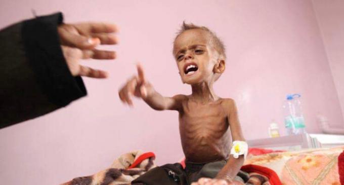 Il vient de mourir d'une grave malnutrition due à l'embargo de l'Arabie Saoudite sur le Yémen !