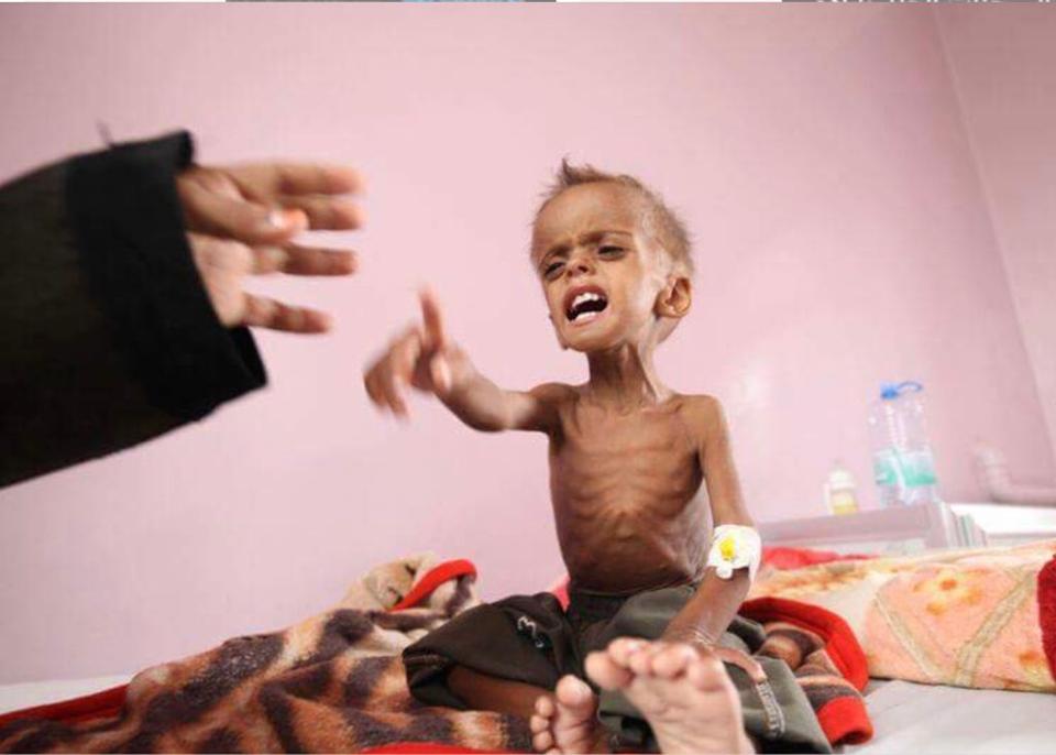 Il vient de mourir d'une grave malnutrition due à l'embargo de l'Arabie Saoudite sur le Yémen !1