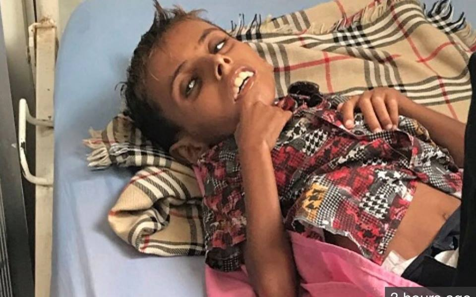Il vient de mourir d'une grave malnutrition due à l'embargo de l'Arabie Saoudite sur le Yémen !2