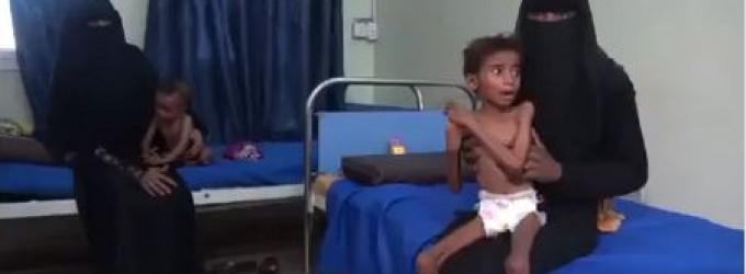 Les enfants gravement affamés du Yémen sont aujourd'hui menacés par la pire épidémie de choléra au monde.