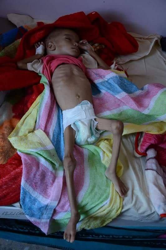 un enfant au Yémen meurt toutes les 10 minutes1