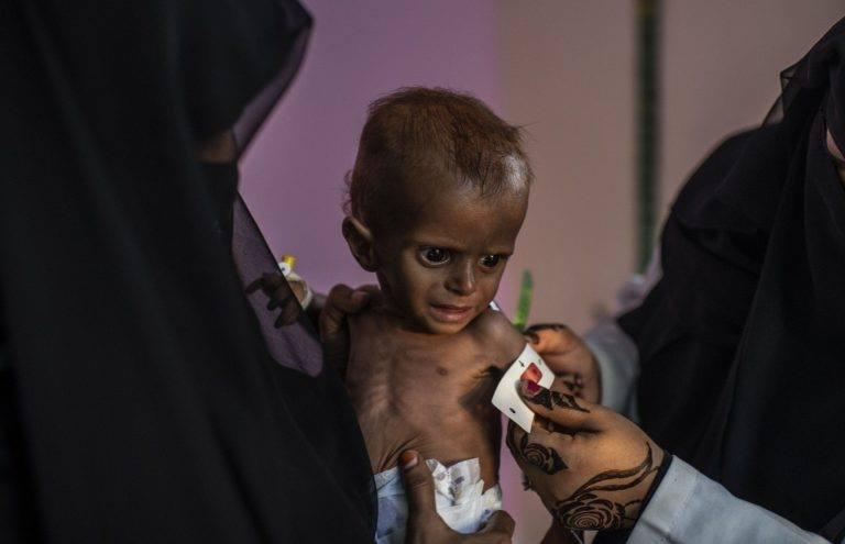 Ne soyons pas indifférents, aidons ces enfants innocents