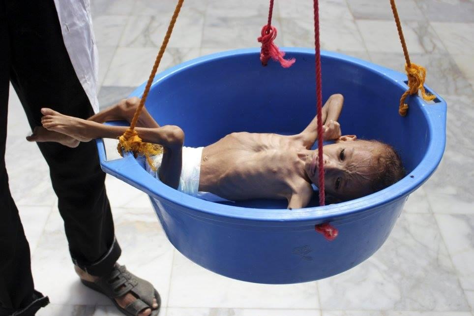Ne soyons pas indifférents, aidons ces enfants innocents2