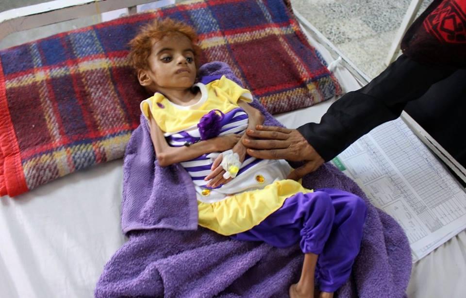Ne soyons pas indifférents, aidons ces enfants innocents3