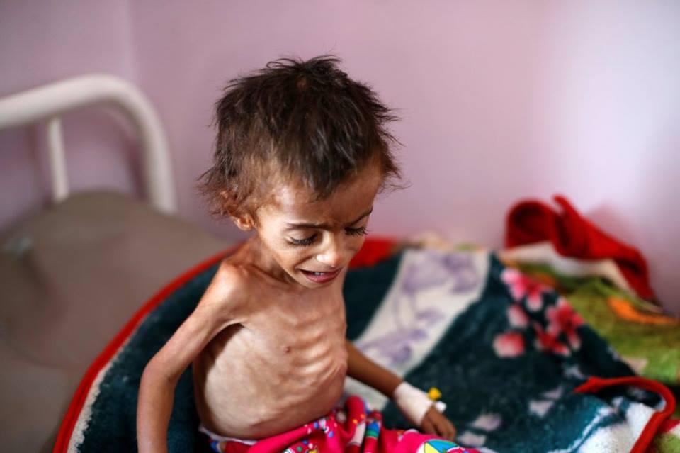 Ne soyons pas indifférents, aidons ces enfants innocents5