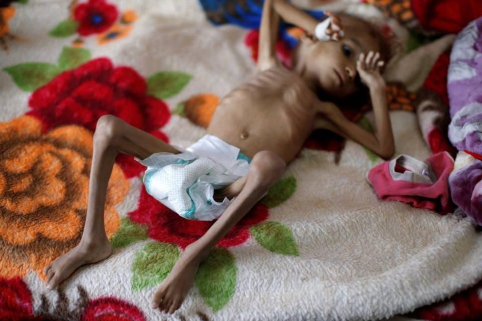 Ne soyons pas indifférents, aidons ces enfants innocents6