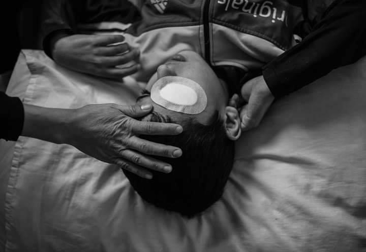 Le jeune Palestinien Mohammed Al-Najjar (12 ans) vit un grave choc psychologique après avoir perdu son œil droit par la balle d'un sniper israélien1