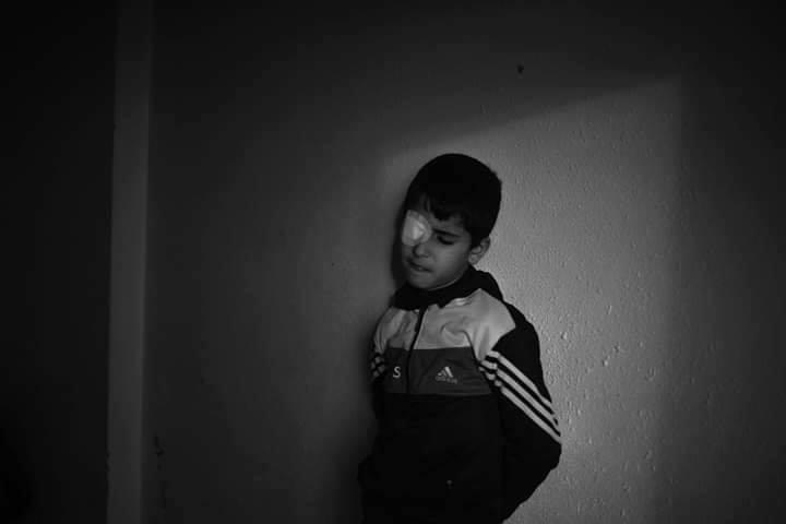 Le jeune Palestinien Mohammed Al-Najjar (12 ans) vit un grave choc psychologique après avoir perdu son œil droit par la balle d'un sniper israélien3