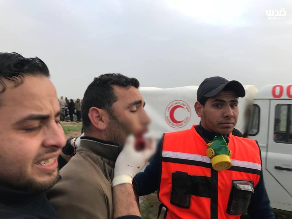 Plusieurs palestiniens ont été blessés par des tireurs d'élite des forces d'occupation vendredi lors des manifestations de la Grande Marche du Retour à Gaza2