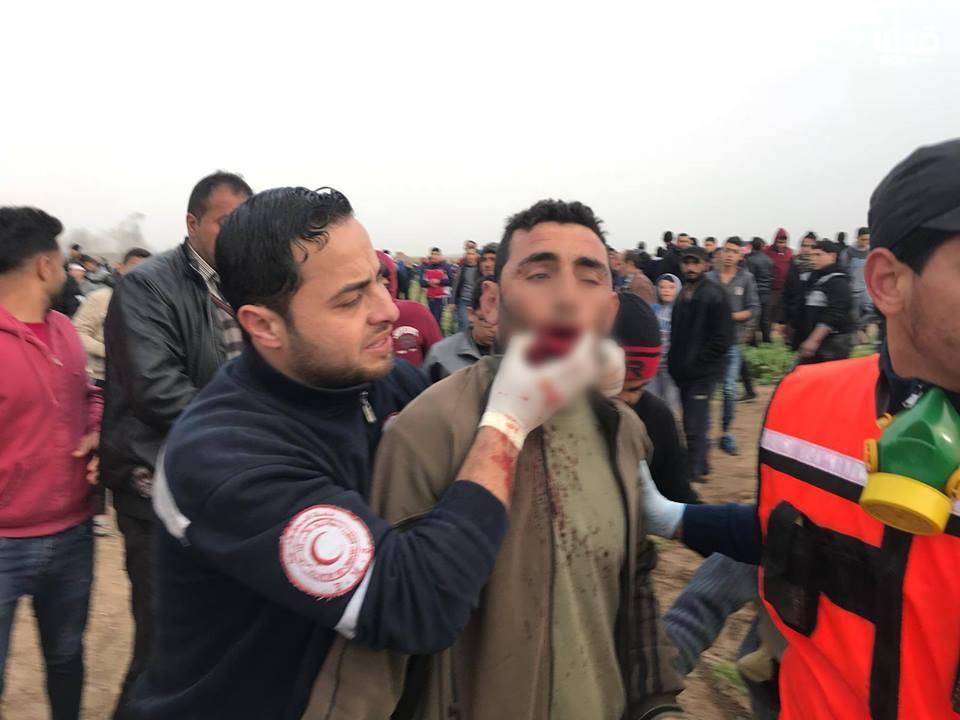 Plusieurs palestiniens ont été blessés par des tireurs d'élite des forces d'occupation vendredi lors des manifestations de la Grande Marche du Retour à Gaza4