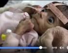 7 millions d'enfants au Yémen dorment le ventre au creux et souffrent de malnutrition à cause de la guerre et la pauvreté.