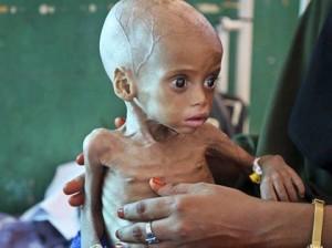 Le Yémen a longtemps lutté contre la malnutrition. Mais l'embargo de la coalition saoudienne a détruit les systèmes de distribution et a fait entrer le pays dans la famine.1
