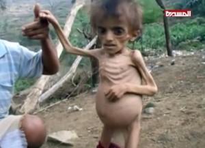 Le Yémen a longtemps lutté contre la malnutrition. Mais l'embargo de la coalition saoudienne a détruit les systèmes de distribution et a fait entrer le pays dans la famine.2