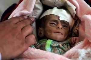 Le Yémen a longtemps lutté contre la malnutrition. Mais l'embargo de la coalition saoudienne a détruit les systèmes de distribution et a fait entrer le pays dans la famine.3